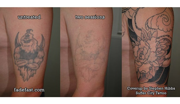 Nwa Dealpiggy 80 Laser Tattoo Removal Or Ink Reduction Treatment
